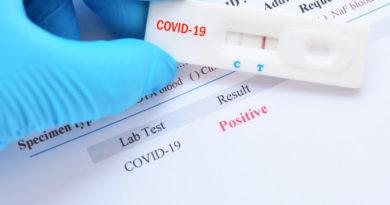 Parte diario epidemiológico covid-19 al 31 de mayo de 2020